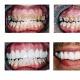 Bright Smile Dental Surgery Pte Ltd (HDB Jalan Membina)