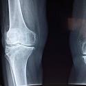 Singapore Sports Orthopaedic Clinic